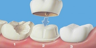 dental crowns in whitby- Emergecy dental office Whitby Smile Centre specialist in both family and cosmetic dentistry.
