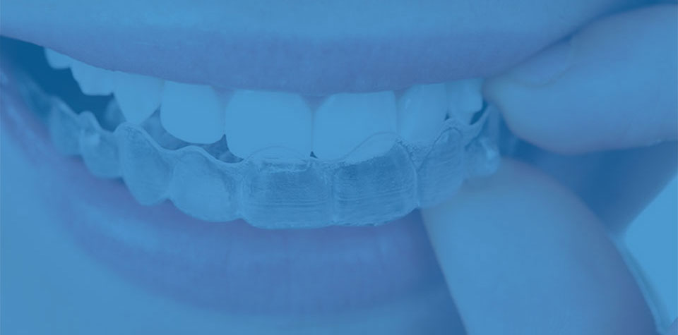 invisible clear braces and clear aligners at Whitby smile centre.