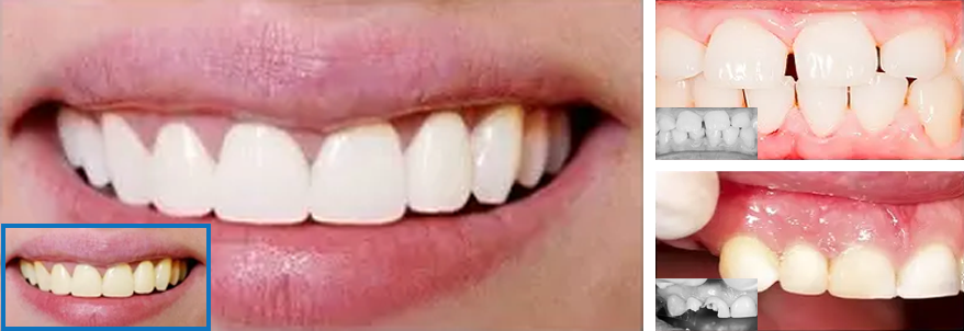 invisible braces- cosmetic denistry and orthodontics at Whitby Smile Centre.